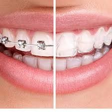 Invisalign dominates braces